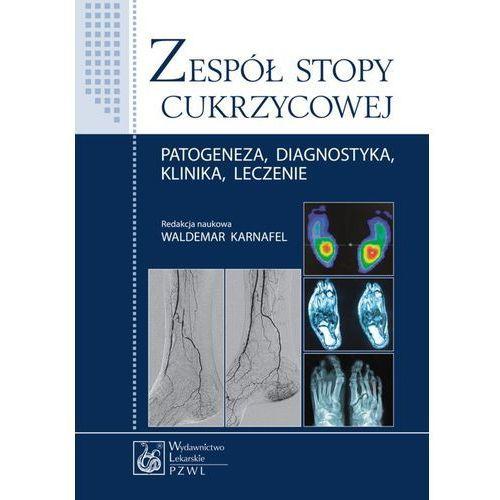 Książki medyczne, Zespół stopy cukrzycowej. Patogeneza, diagnostyka, klinika, leczenie (opr. miękka)